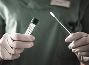Ministério Público obtém decisão que determina a regularização o abastecimento de estoque de testes da Covid-19 no laboratório central do Estado