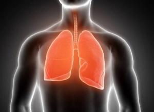 Chega ao Brasil remédio inédito para tratar um tipo de câncer de pulmão altamente letal